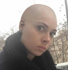 Лысая Самбурская удивила своих фанатов