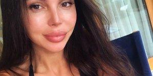 Оксана Самойлова показала как выглядит спустя сутки после родов